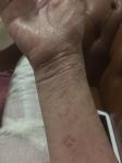 Cracked wrists 6 Jan 16