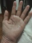 Cracked hands 6 Jan 16